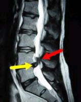 脊柱管狭窄症について(20171003)